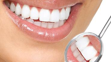 tanden bleken 2